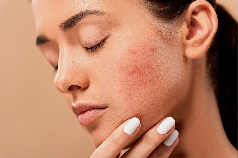acné adulto